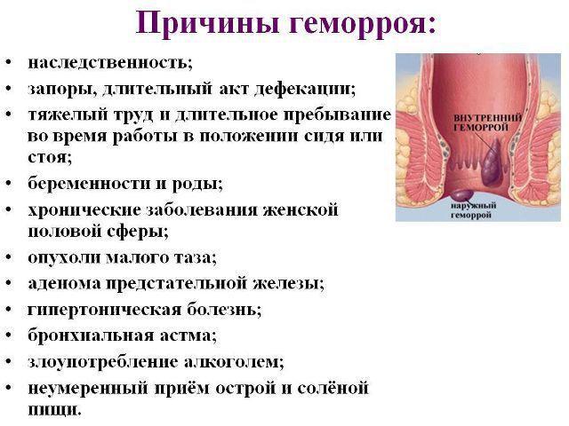 Геморрой Методы Лечения Дезартеризация