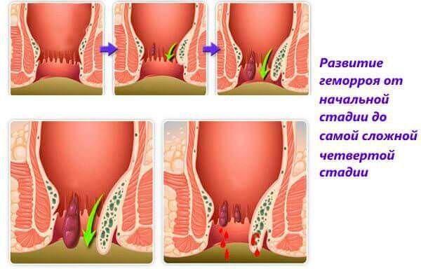 Начальная стадия геморроя у беременных