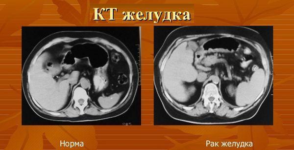 Снимок КТ желудка