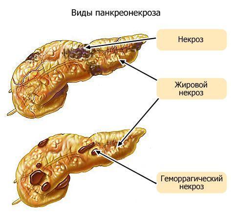 Виды панкреонекроза