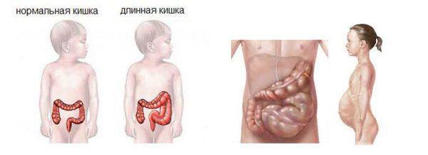 Болезнь гиршпрунга у детей