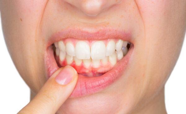 Гингивит - воспаление десенной ткани