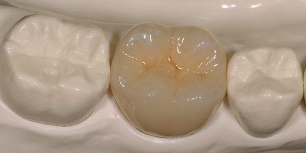 Коронку или имплант придется менять, если появилась индивидуальная непереносимость материала
