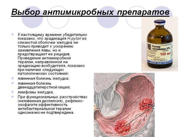 Лечение Helicobacter pylori