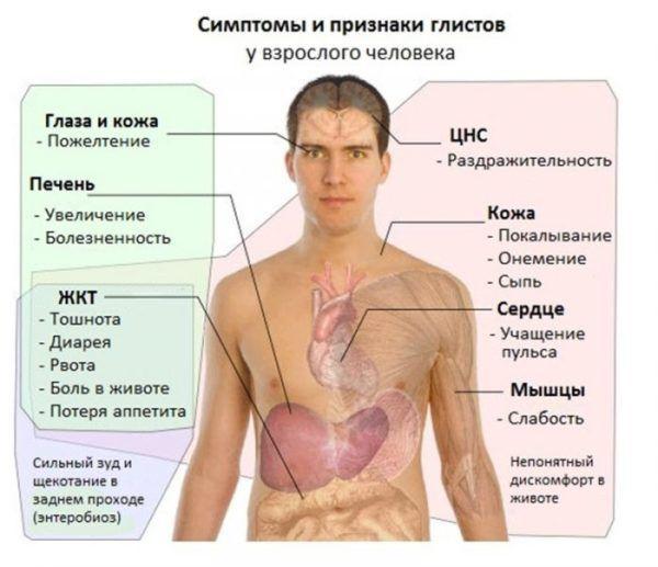 Общие симптомы и признаки глистов у человека
