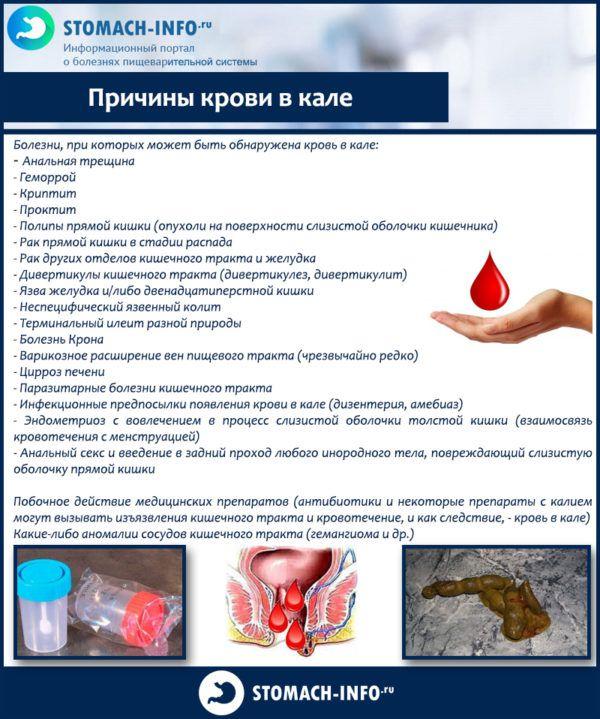 Причины крови в кале