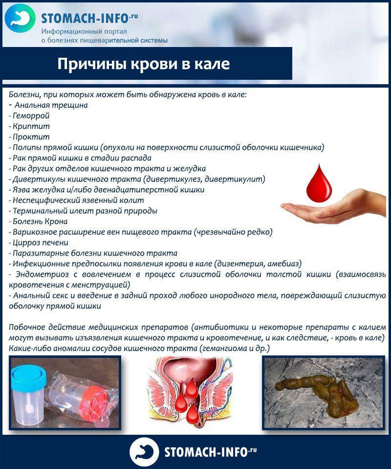 Кровь в кале у взрослого мужчины - основные причины, лечение