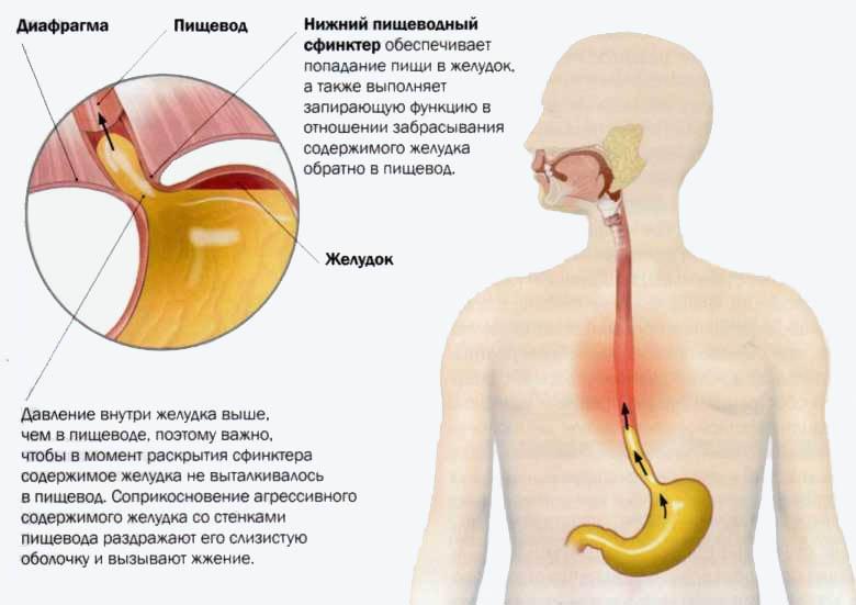 Жжение в области желудка: причины, лечение, особенности питания