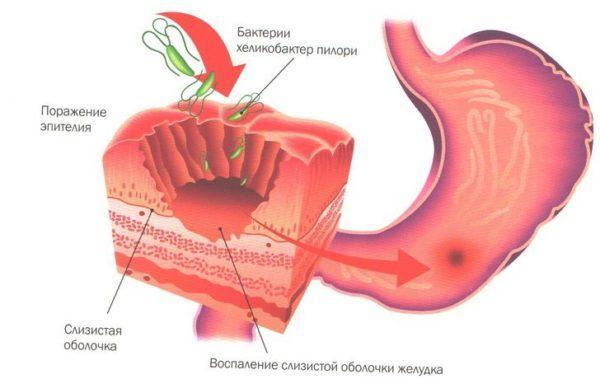 Проникновение бактерий Хеликобактер Пилори