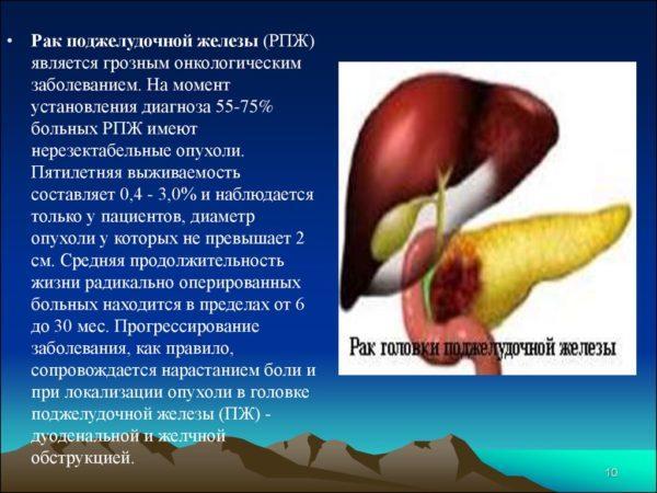 Рак поджелудочной железы (РПЖ)