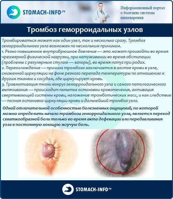 Чем лечить геморроидальные узлы в домашних условиях 870