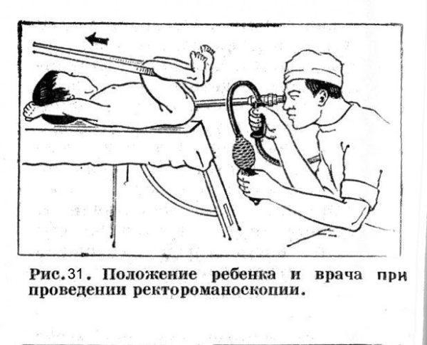 Схема проведения ректороманоскопии ребёнку