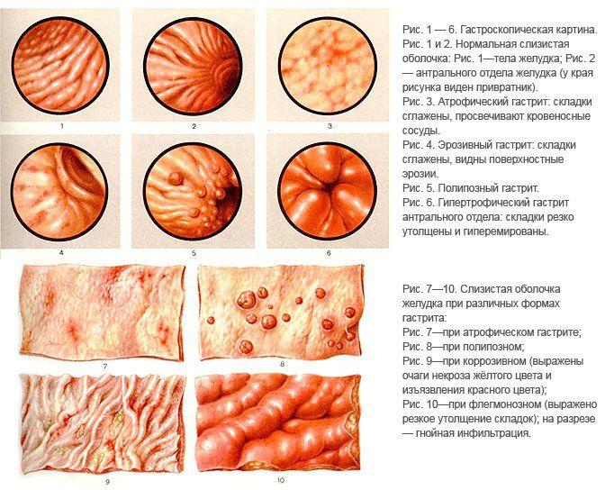 Обследование желудка ФГДС - как подготовиться и как проходит