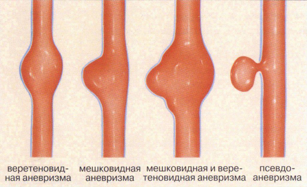 Виды аневризма аорты