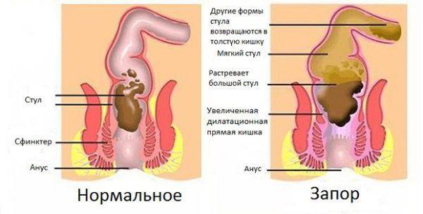 Вялый кишечник - симптомы и лечение