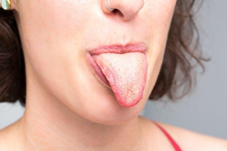 Сухость во рту и белый налет на языке
