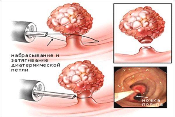 Удаление полипов кишечника