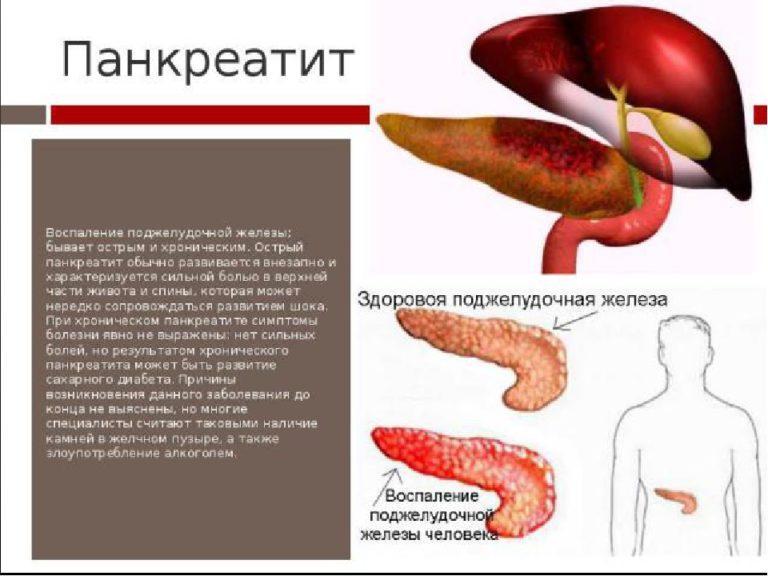 Чистотел при панкреатите: лечение поджелудочной