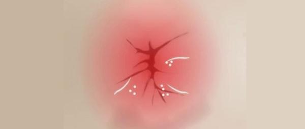 Покраснение и сыпь вокруг анального отверстия возникают из-за кислоты, которую выделяют самки остриц