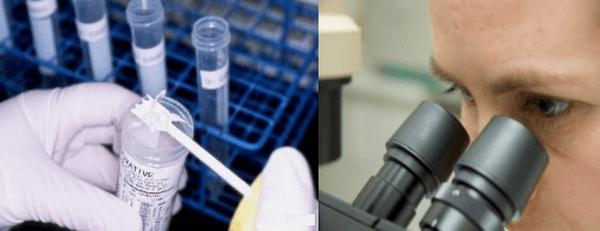 Копрограмма - один из самых точных способов диагностики паразитарных инфекций