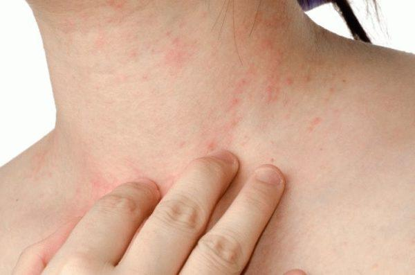 У взрослых лямблиоз нередко проявляется кожным зудом и высыпаниями