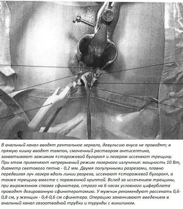 Способ хирургического лечения хронической анальной трещины