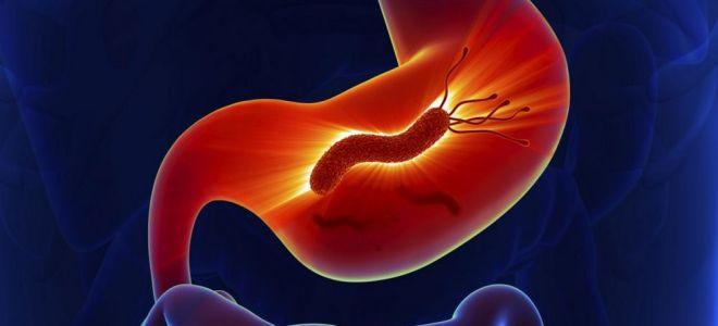 Хеликобактер: симптомы и лечение