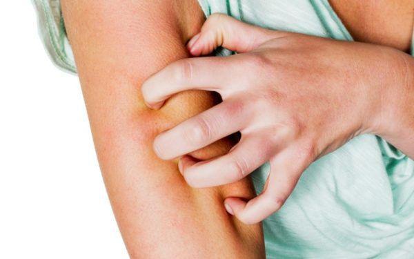 При холестазе может наблюдаться зуд кожных покровов
