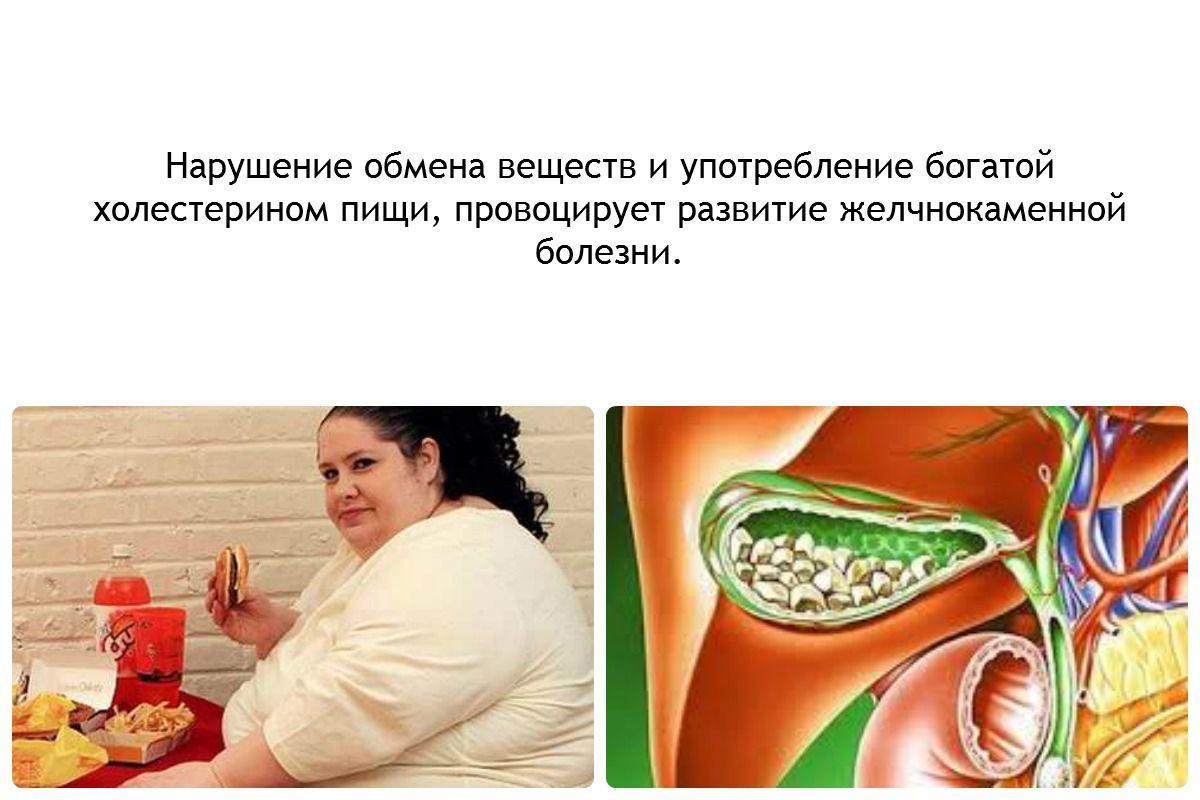 Причины развития желчнокаменной болезни