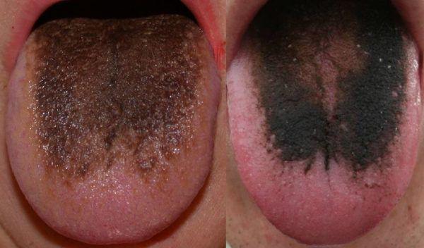 Состояние языка при циррозе печени