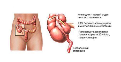 Воспаление аппендикса у женщин