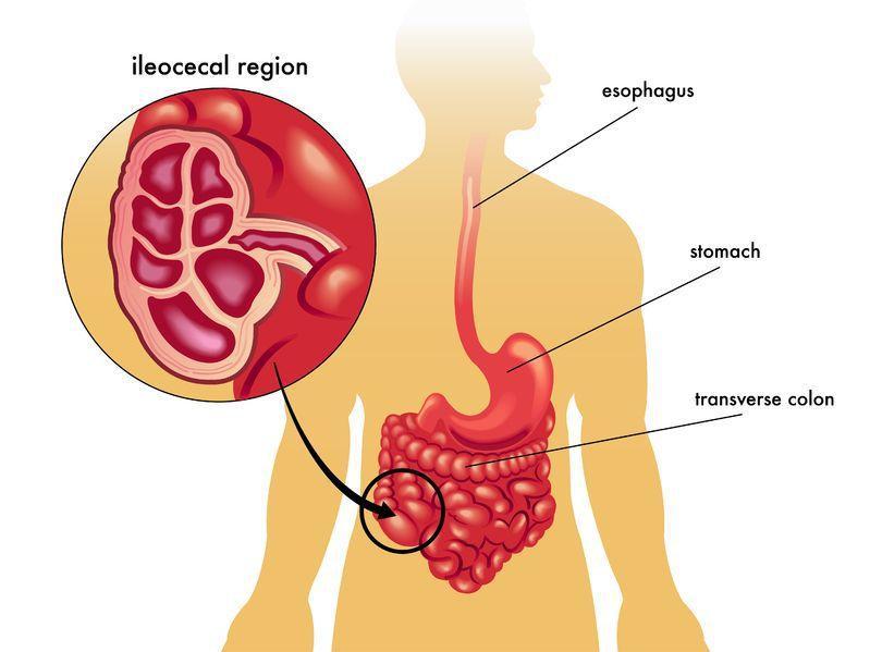 Язвенный колит – это хроническое воспалительное заболевание слизистой оболочки толстой кишки