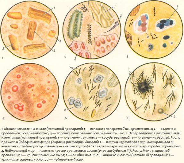 Микропрепараты кала