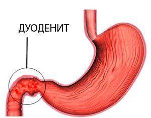 Дуоденит (воспаление двенадцатиперстной кишки){amp}#x9;