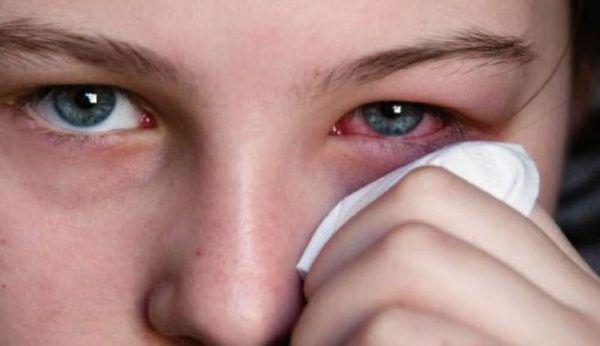 Аллергическое воспаление глаз при лямблиозе