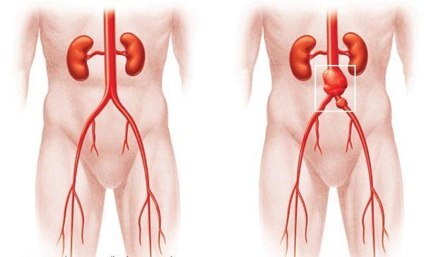 Аневризма брюшной полости изнутри