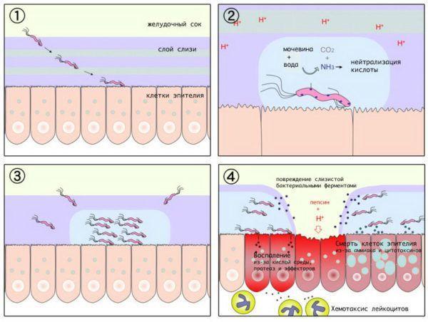 Бактерия Helicobacter pylori в желудке - развитие язвы