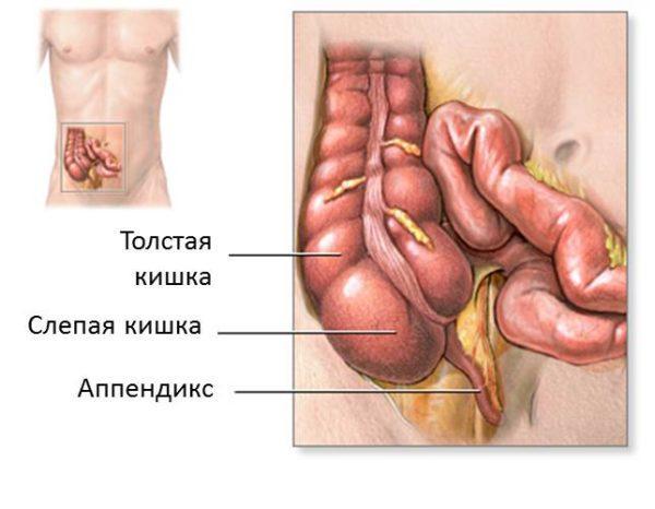 Что такое аппендицит