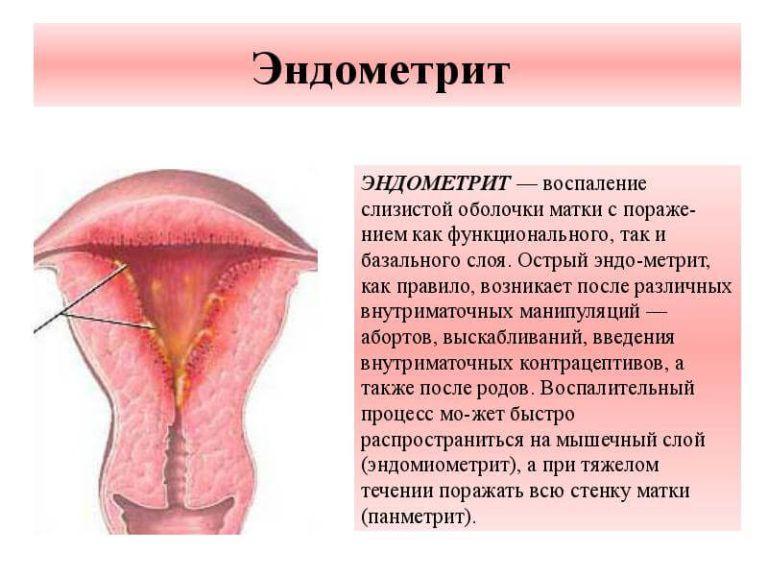 Кольпит что это за болезнь симптомы