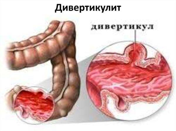 Дивертикулит