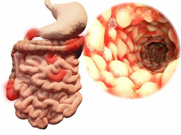 Дивертикулит кишечника может развиваться даже внутриутробно, но чаще развивается в течении жизни