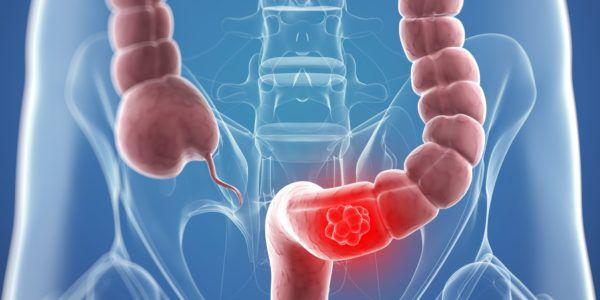 Дивертикулы кишечника - что это такое
