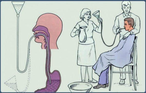 Для удаления остатков зараженной пищи проводят промывание желудка