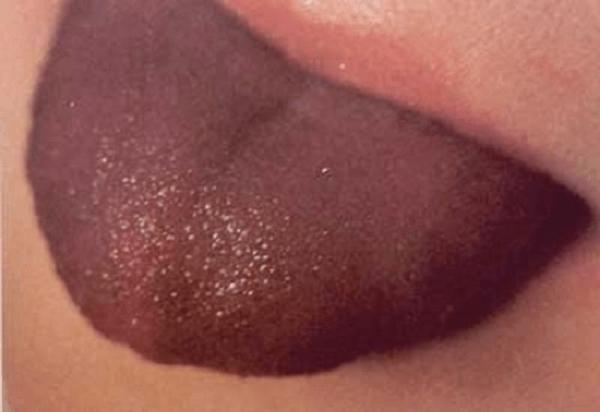 Фиолетовый язык
