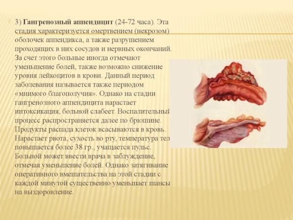 Гангренозный аппендицит