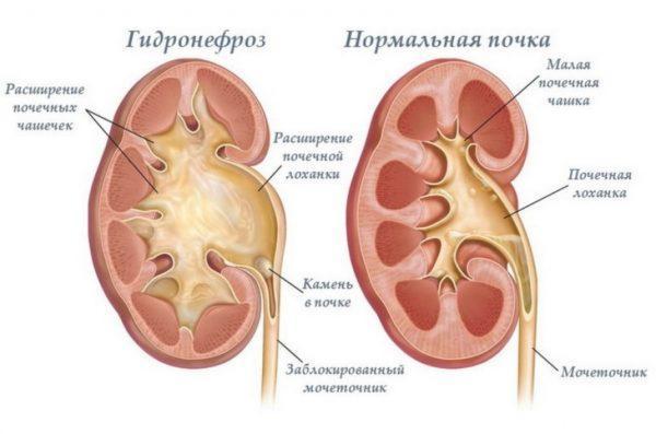 Гидронефроз. Отличие здоровой почти от больной