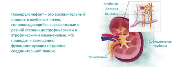 Гломерулонефрит – краткое описание заболевания
