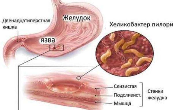 Хеликобактер пилори внутри пищеварительной системы