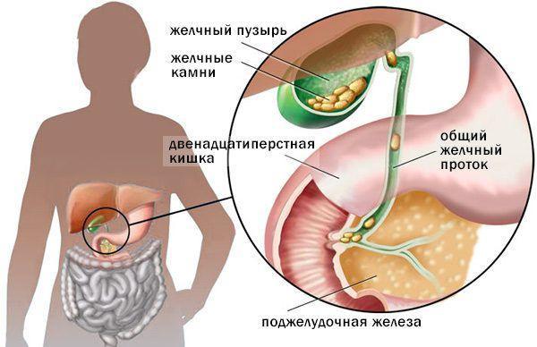 Холецистит изнутри