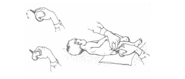 Как правильно сделать клизму грудному ребенку